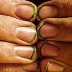 nail Inside 02